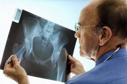 рентгенодиагностика наследственных системных заболеваний скелета