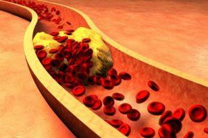 Лечение гиперлипидемии