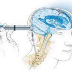 Способы лечения гидроцефалии