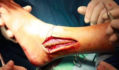 Оперативное устранение перелома (МОС)