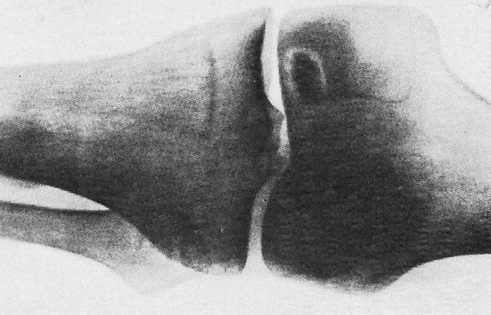 Болезнь Кенига в коленном суставе