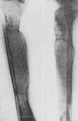 Болезнь Реклингхаузена. Большеберцовая кость перестроена: резко и неравномерно утолщена, выполнена громадными китовидными полостями, кортикальный слой резко истончен.