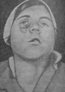 Деформация после удаления верхней челюсти, пораженной саркомой