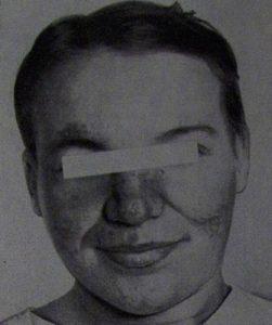 Элементы дискоидной красной волчанки на лице в виде «бабочки», выпадение волос.