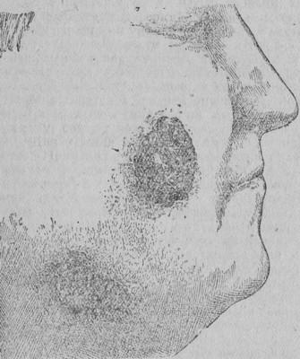 Кожный лейшманиоз (Гессе Э.Р., 1934 год)