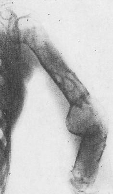 Болезнь Реклингхаузена. Плечевая кость перестроена: утолщена, кортикальный слой разволокнен, множество крупных кистовидных ячеек.