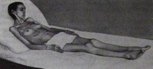 Больная системной красной волчанкой хронического течения. Резкая кахексия (вес 35 кг).