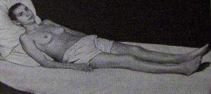 Больная системной красной волчанкой хронического течения после лечения гормонами