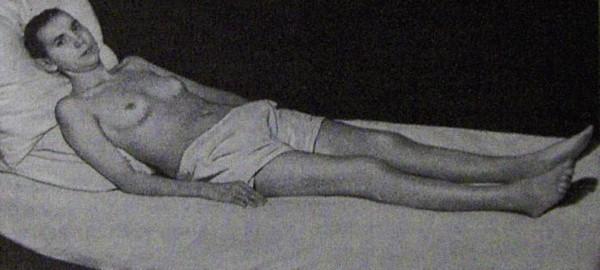 Больная системной красной волчанкой хронического течения после лечения стероидными гормонами