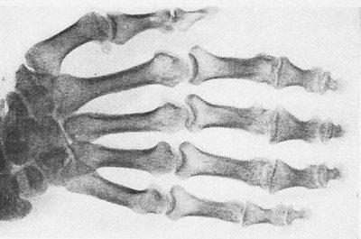 Уровская болезнь: характерная деформация кистей, развившаяся вследствие нарушения роста костей
