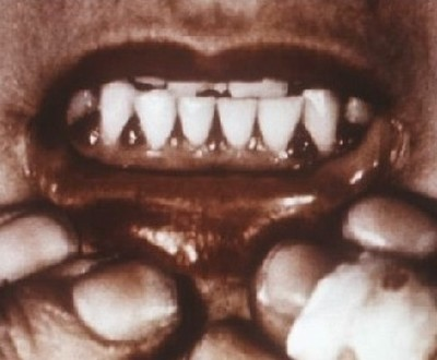 Зубы при болезни Меллера-Барлоу