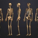 Поражение костей при системной красной волчанке