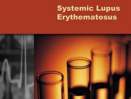 Системная красная волчанка («systemic lupus erythematosus»)