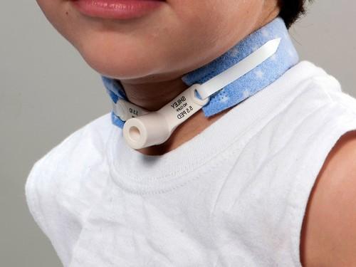 Трахеостома у ребенка