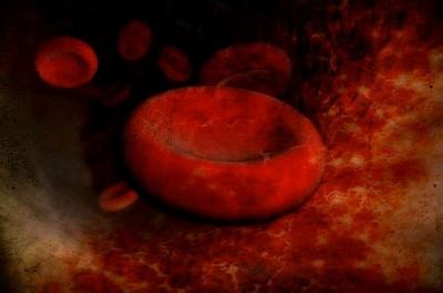 Гемолитическая анемия при системной красной волчанке