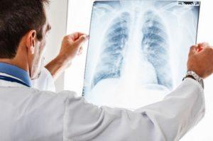 Гнойно-некротические болезни легких