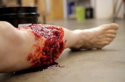 Раны с малой зоной повреждения