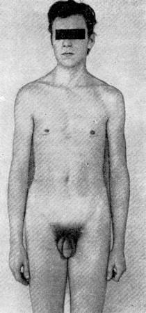Фото больного с синдромом Клайнфельтера