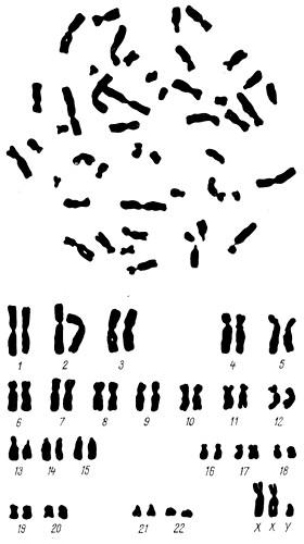 Кариотип при синдроме Клайнфельтера - 44A + XXY