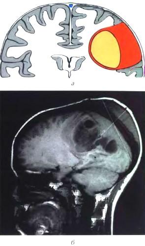Кистозная менингиома II типа (по Nauta)