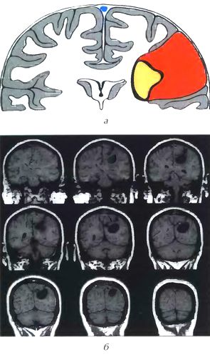 Кистозная менингиома III типа (по Nauta)