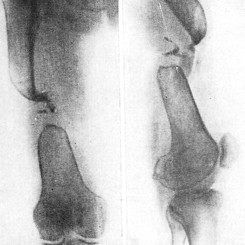 Остеолиз отломков бедренной кости в зоне перелома