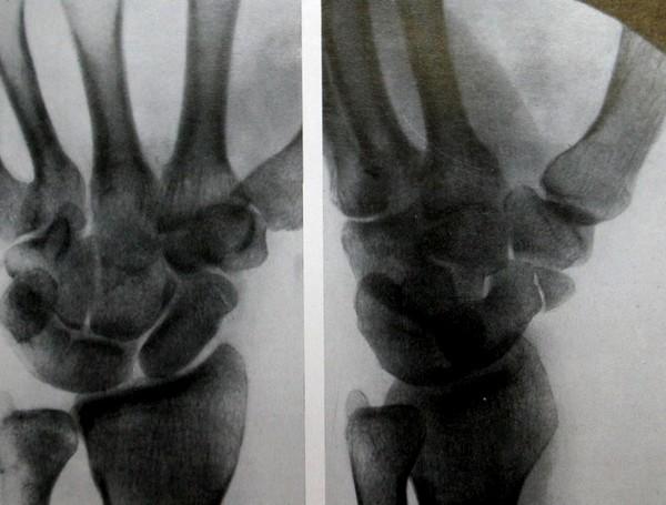 Перелом бугорка ладьевидной кости