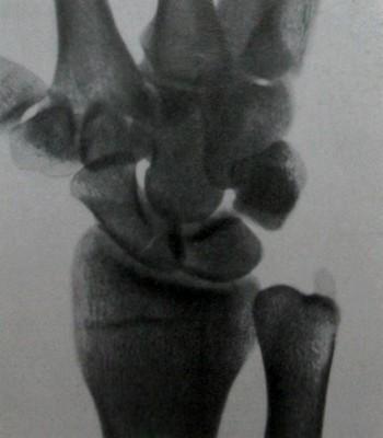 Перелом в проксимальной трети ладьевидной кости