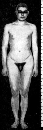 Синдром Клайнфельтера (фото): оволосение в области лобка по женскому типу