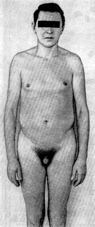 Фото синдрома Клайнфельтера: penis небольшой, мошонка маленькая