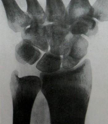 Снимок ладьевидной кости после 3,5-месячной иммобилизации