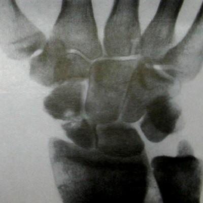 Перелом ладьевидной кости произошел несколько месяцев