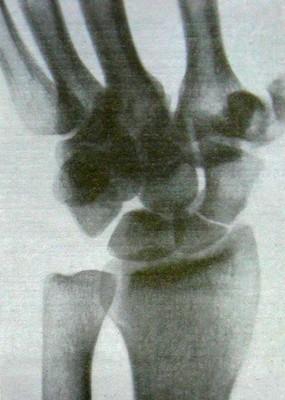 Свежий перелом в проксимальной трети ладьевидной кости