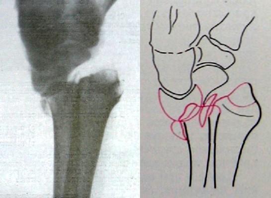 Вывих запястья в лучезапястном суставе на боковом рентгеновском снимке