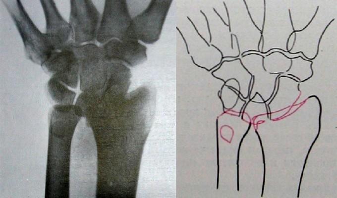Вывих запястья в лучезапястном суставе на ладонном рентгеновском снимке