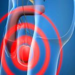Гипогонадизм — основная причина бесплодия