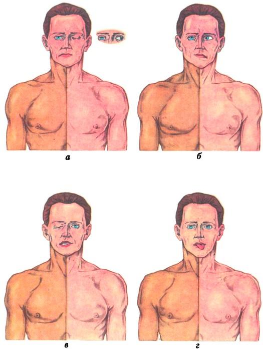 Альтернирующие параличи: Вебера; Фовилля; Мийара-Гублера; Джексона.