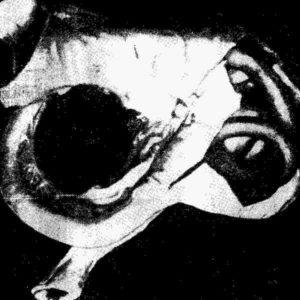 Аскариды в червеобразном отростке слепой кишки человека