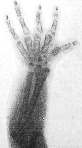 Диастрофическая дисплазия. Фото рентгенограммы кисти ребенка 4 лет.