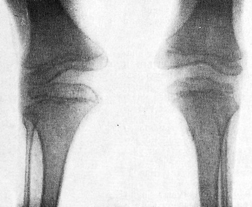 Диастрофическая дисплазия. Фото рентгенограмм коленных суставов ребенка 7 лет.