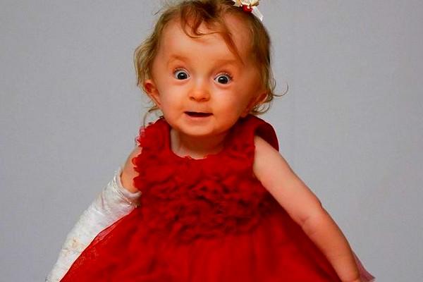Фото ребенка с несовершенным остеогенезом