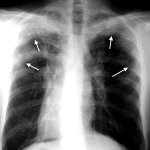 Инфильтраты Леффлера на рентгеновском снимке при аскаридозе