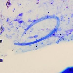 Кишечная угрица под микроскопом