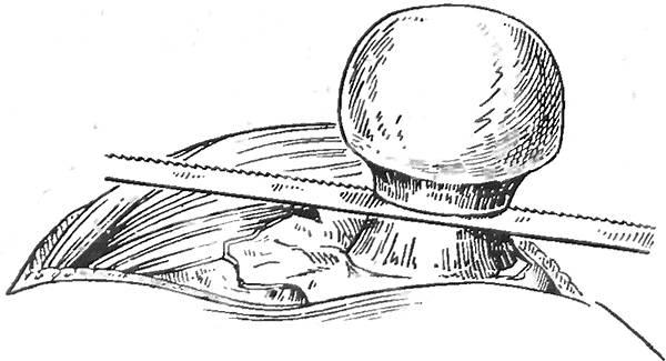 Отпиливание головки бедренной кости