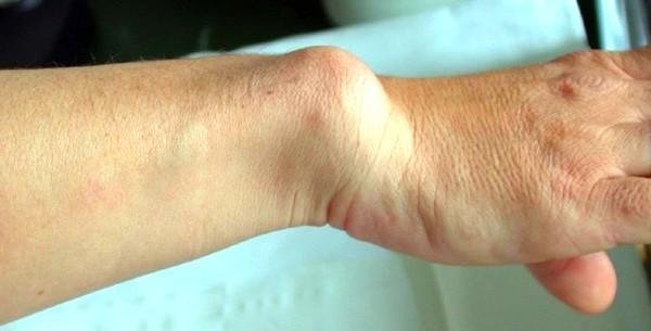 Рука больного мелореостозом