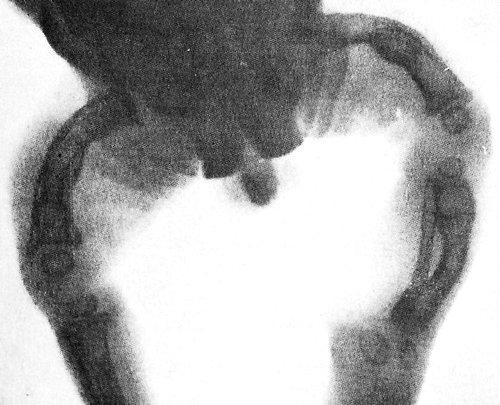 Фото рентгенограммы больного с тяжелой формой несовершенного остеогенеза: деформация нижних конечностей