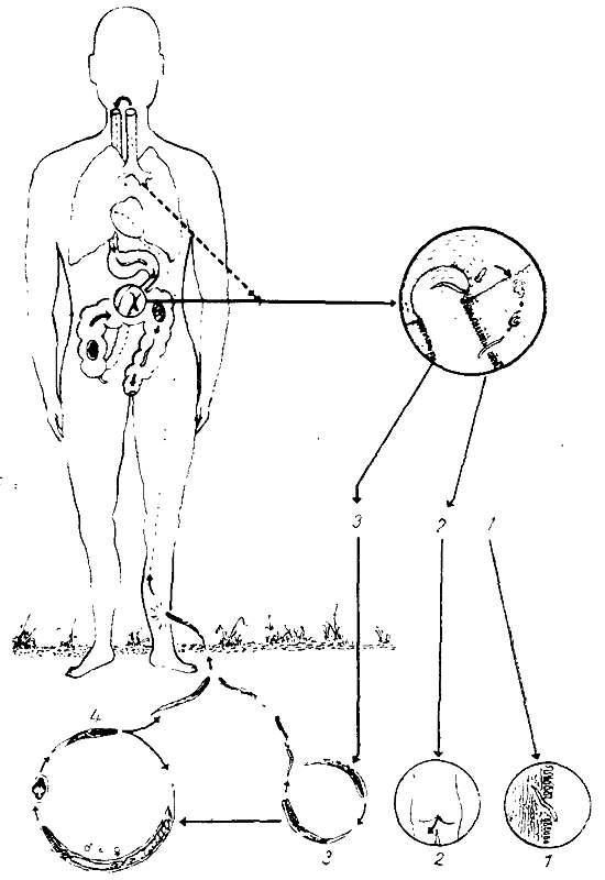 Жизненный цикл Strongyloides stercolaris - стронгилоидоз (фото)