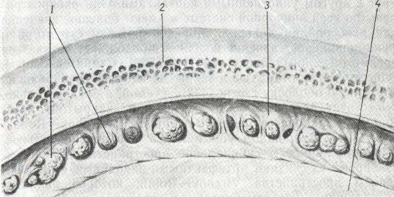 Поперечное сечение арахноидальных грануляций, проникающих в сагиттальный синус (по Millen и Woollam)