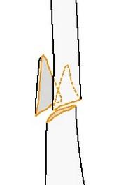 Клиновидный перелом бедра: изгибающий клин