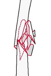 Клиновидный перелом бедра: оскольчатый клин